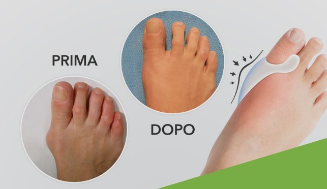 benefici footfix